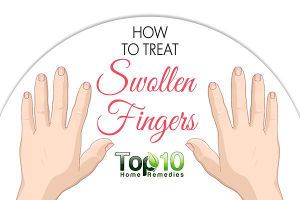 How to Treat Swollen Fingers - Page 2 of 3 | Top 10 Home ...