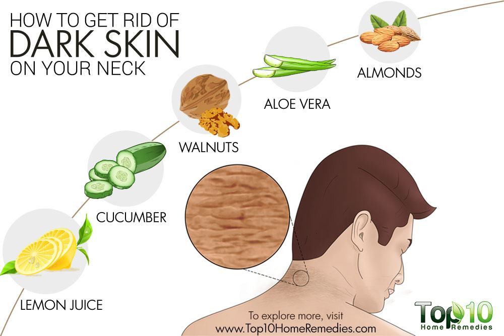 How to Get Rid of Dark Skin on Your Neck | Top 10 Home ...