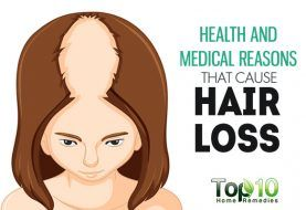 10 Health and Medical Reasons that Cause Hair Loss