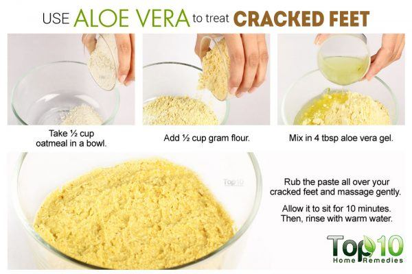 aloe vera for cracked feet