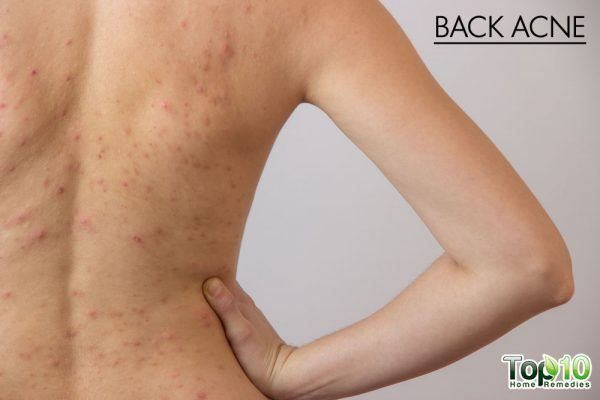back acne symptoms