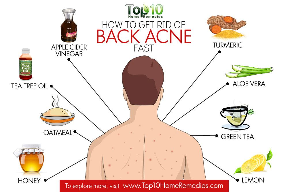 Home remedies to treat acne fast