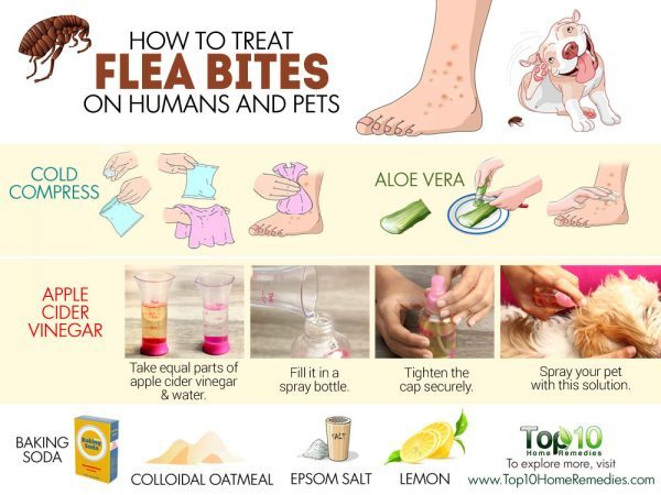 how to treat flea bites