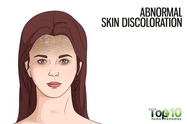 abnormal skin discoloration