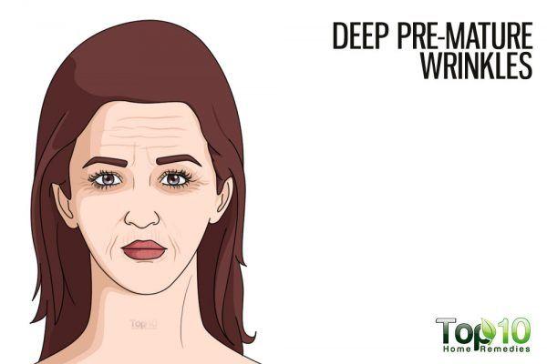 deep premature wrinkles