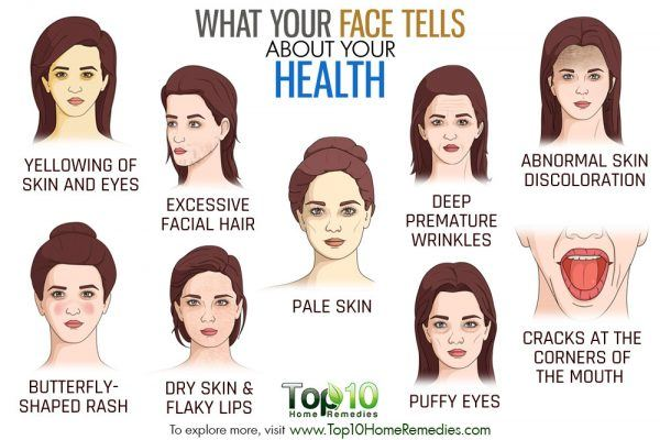 what your face tells about your health