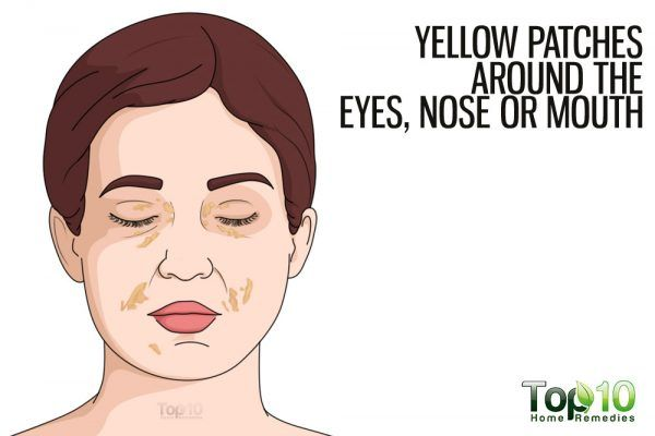yellow patches around eyes