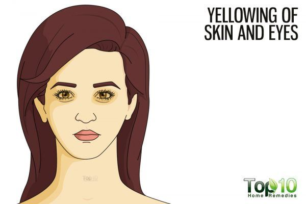 yellow skin and eyes