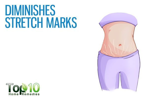 diminishes stretch marks
