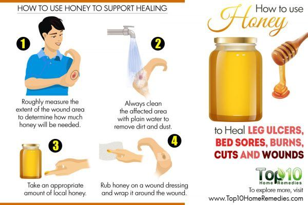 how to use honey to heal leg ulcers, bed sores and wounds