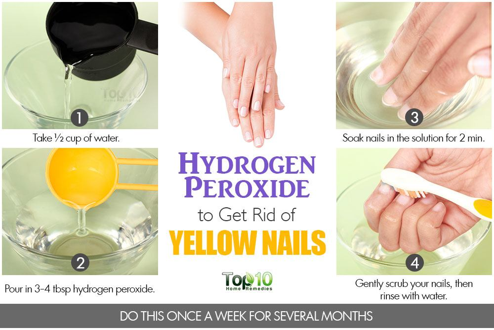 How to Get Rid of Yellow Nails | Top 10 Home Remedies