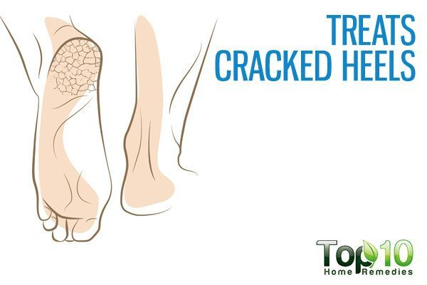 treats cracked heels
