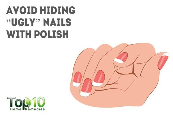 avoid hiding ugly nails with nail polish