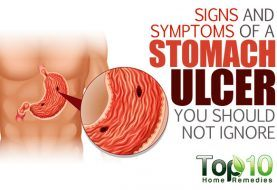 10 Signs and Symptoms of a Stomach Ulcer You Should Not Ignore