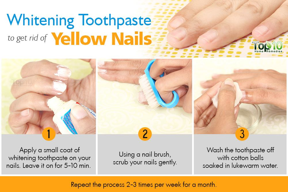 Hydrogen Peroxide And Baking Soda To Whiten Nails Nail