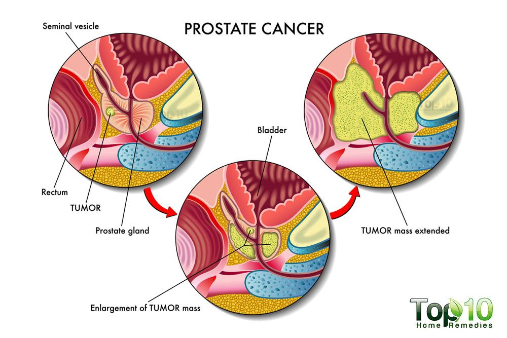 signs and symptoms of prostate cancer that you must know | top 10, Human Body