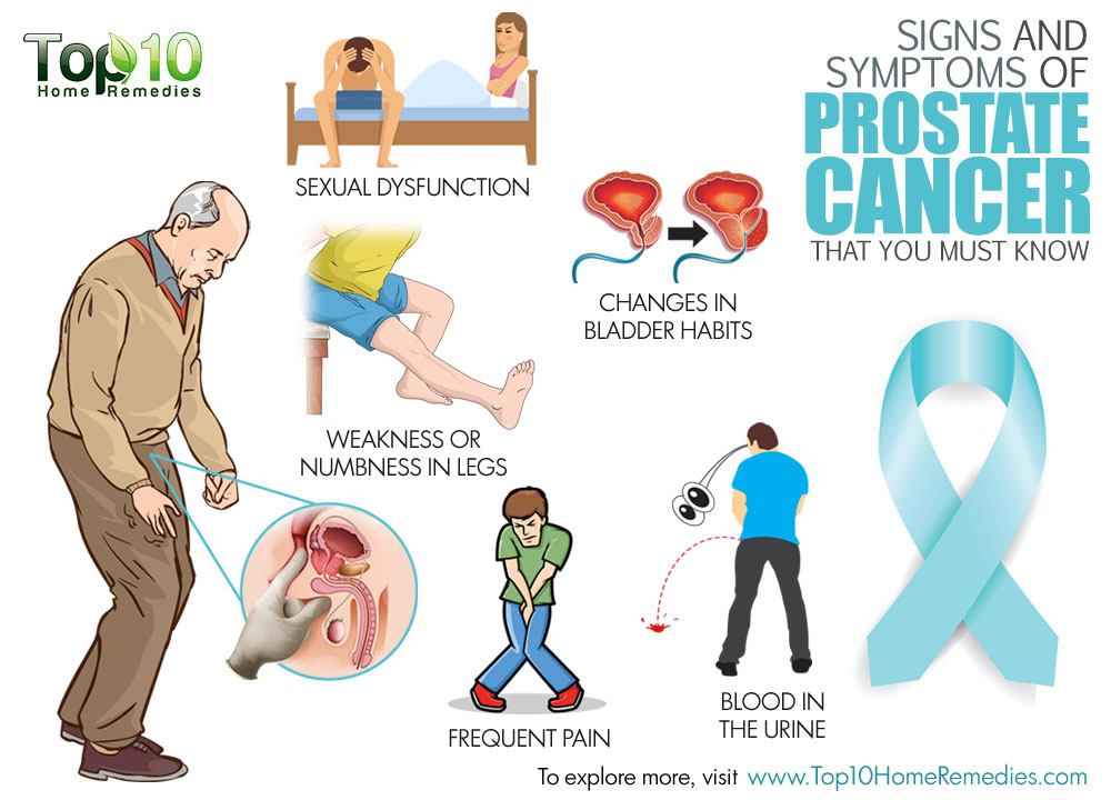 the cause and effect of prostate Prostate cancer is a disease in which malignant (cancer) cells form in the tissues of the prostate signs of prostate cancer include a weak flow of urine or frequent urination tests that examine the prostate and blood are used to detect (find) and diagnose prostate cancer certain factors affect.