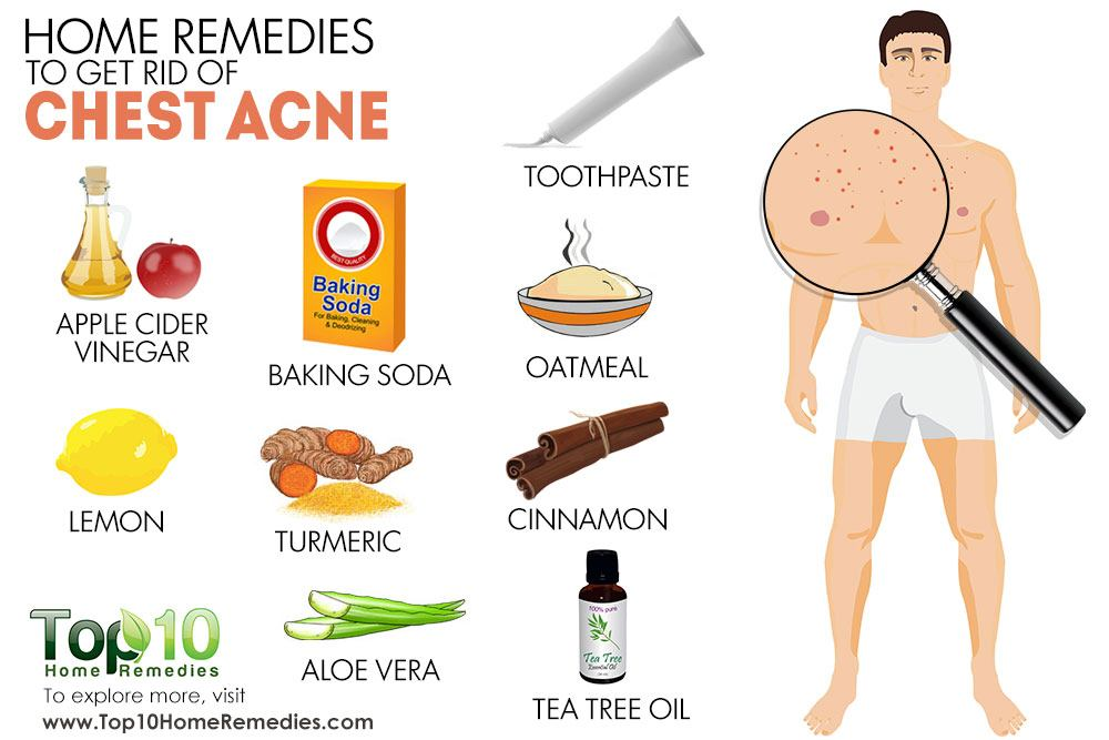 Home Remedies to Get Rid of Chest Acne | Top 10 Home Remedies