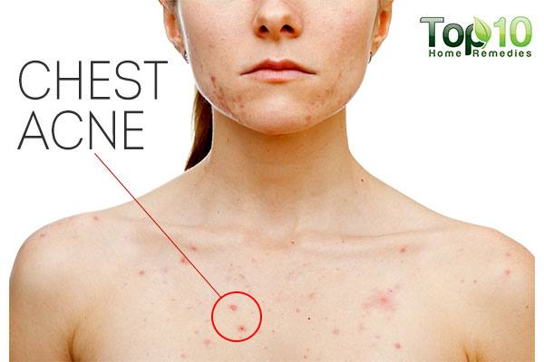 Home Remedies To Climb Rid Of Main part Acne