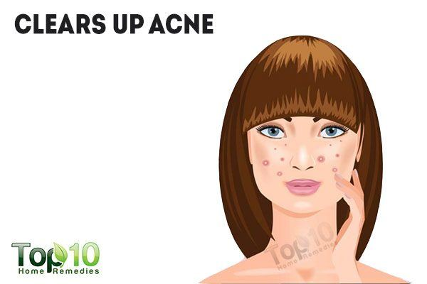 hydrogen peroxide clears up acne