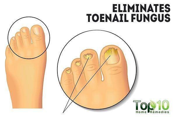 hydrogen peroxide eliminates toenail fungus