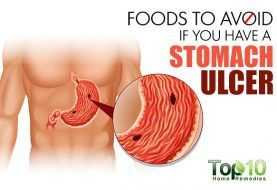 home remedies for a stomach ulcer - page 2 of 3 | top 10 home remedies, Skeleton
