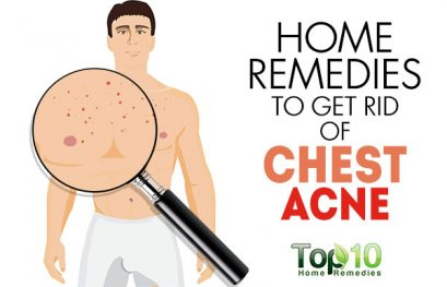 Home Remedies to Get Rid of Chest Acne