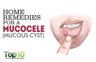 Home Remedies for a Mucocele (Mucous Cyst)