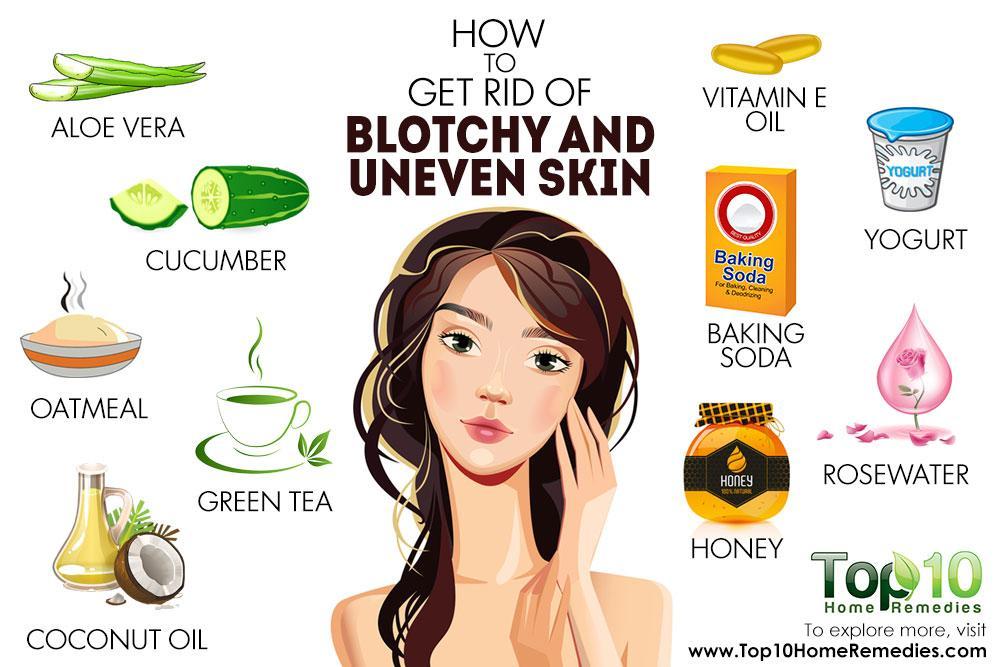Blotchy Skin Natural Remedies