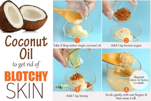 coconut oil remedy for blotchy skin