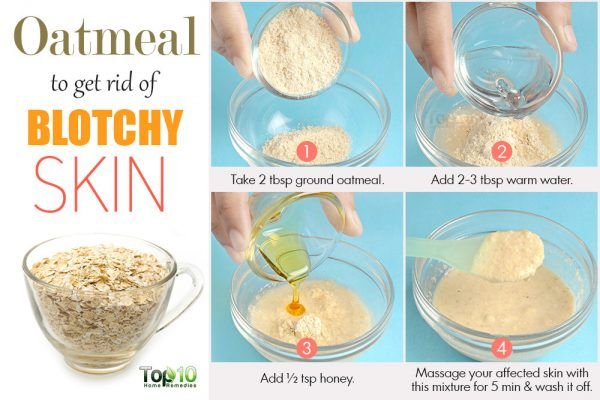 get rid of blotchy sklin with oatmeal