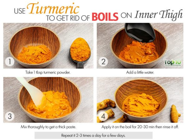 turmeric remedy to get rid of boils on inner thighs