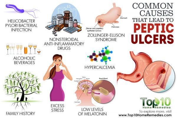 causes that lead to stomach ulcer
