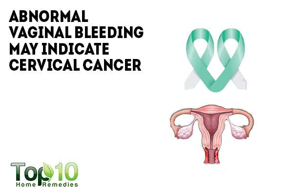 cervical cancer vaginal bleeding jpg 422x640