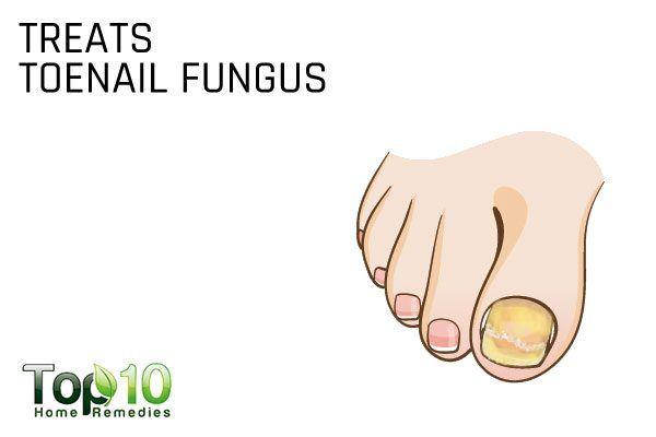 rubbing alcohol fights toenail fungus