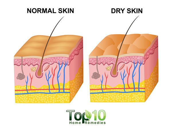 dry skin diagram  advertisements