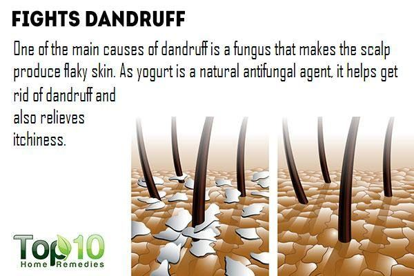 yogurt fights dandruff