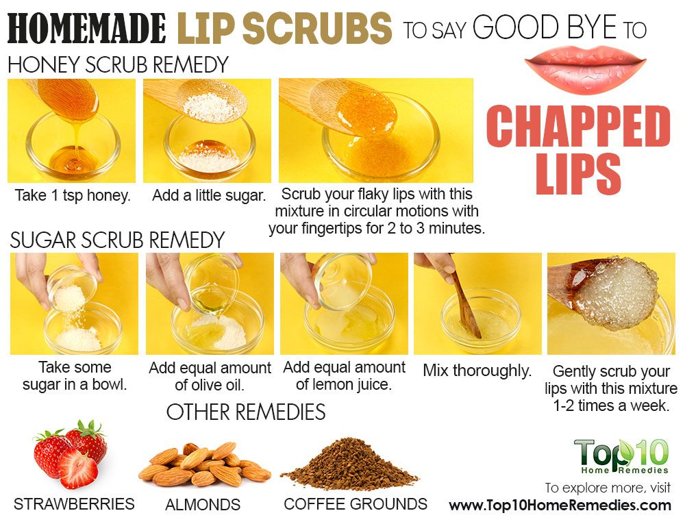 how to get rid of chapped l winter lips