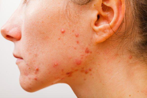 inflamed pimples