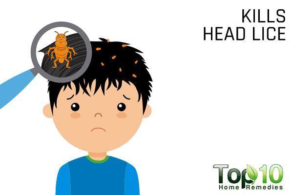 rubbing alcohol kills head lice