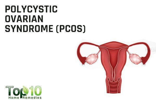 PCOS causes irregular periods
