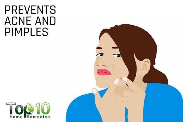 rubbing alcohol prevents acne