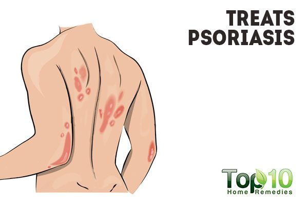 banana peel treats psoriasis