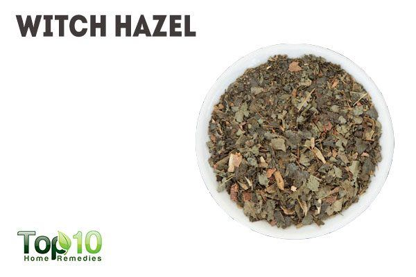 witch hazel for pimples