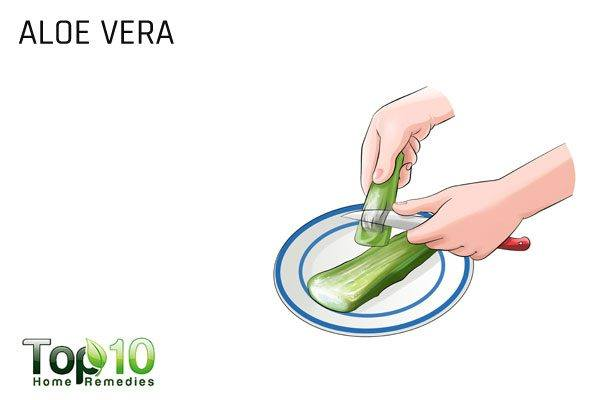 aloe vera to heal burned tongue