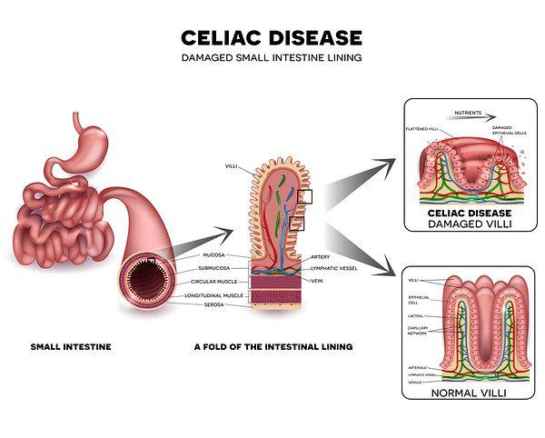 celiac disease damage to small intestine
