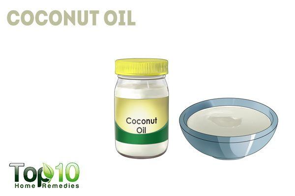 coconut oil to treat herpes