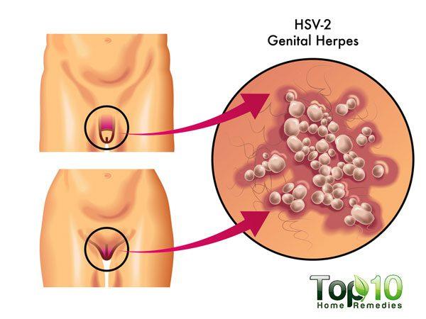 схема генитального герпеса