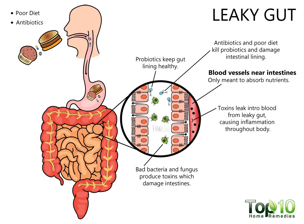 leaky gut syndromw How to cure leaky gut syndrome with diet did you know that leaky gut syndrome can be prevented by having a properly balanced diet your overall health, including your.
