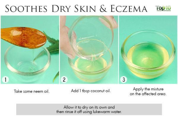 neem oil for eczema